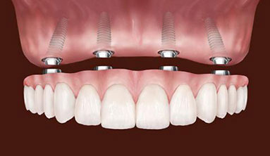 All-On-Four Dental Implants - Costa Rica Dental Proffesionals