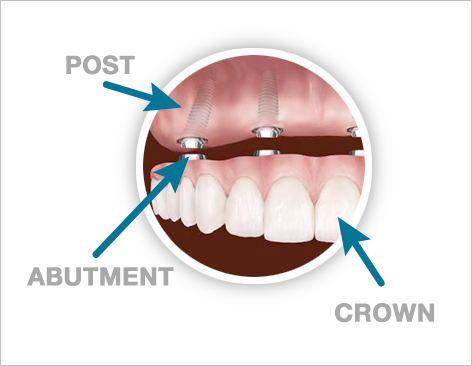 All-On-4 Graphic - Best Dental Solutions Costa Rica