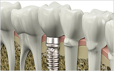 Dental Implant - Artificial Teeth - Full Mouth Restoration