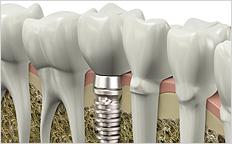 Dental Implant - Artificial Teeth - Full Mouth Restoration
