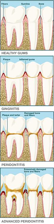 Healthy Gums - Gingivitis - Peridontitis - Advanced Peridontitis