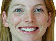 Mujer Sonriendo - Odontología Restaurativa en Costa Rica - Procedimientos Dentales de Alta Calidad