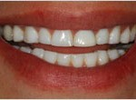 Dental Implants - Temporary Dentures