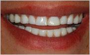 Implantes Dentales - Prótesis Dentales Temporales