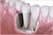 Jawbone - Injertos óseos - Injertos de Hueso - Implantes Dentales
