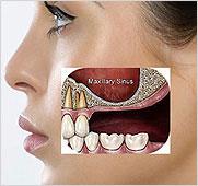 Sinuses - Dental Implants - Permanent Fixed Implants