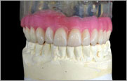 Dentures - Oral Surgery - Improved Fit