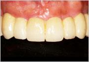 Implant Dentistry - Full Mouth Dental Restorations