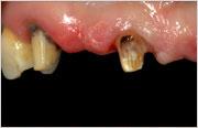 Implant Dentistry - Implants