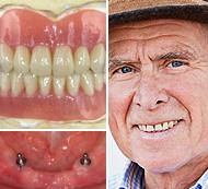 Man Smiling - Restorative Services - High Quality Dental Procedures