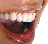 Mujer Sonriente - Odontología Cosmética - Servicios Dentales - Dentistas Cosméticos Profesionales