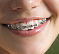 Young With Braces - Orthodontics Service - Dental Specialties