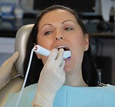 CAD Impression Inside a Patient's Mouth - CAD/CAM Dental Technology