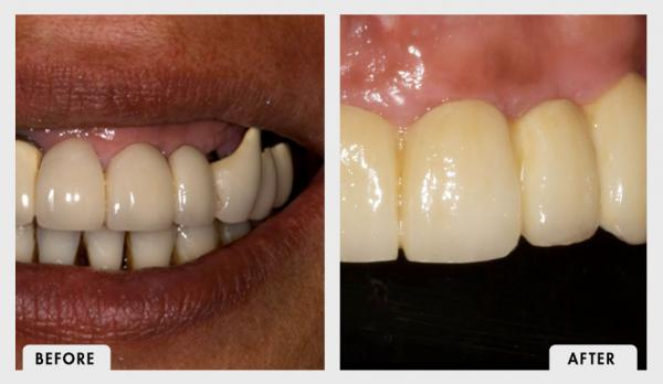Before and After Complete Zirconia Implant Bridge