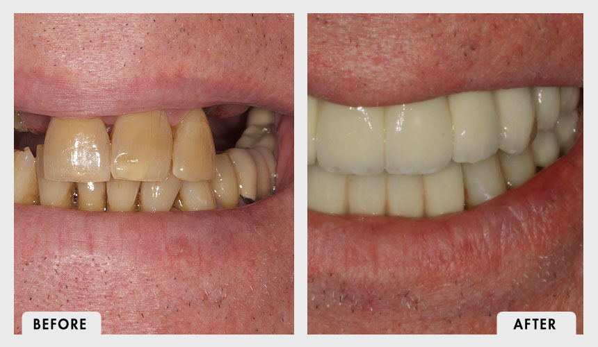 Before and After Implant Rehabilitation