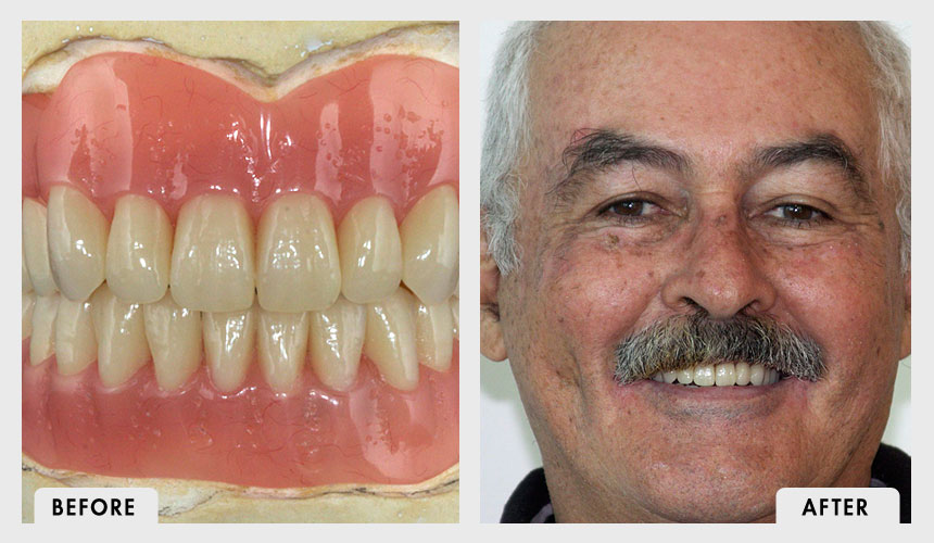 Before and After Implant Supported Overdentures