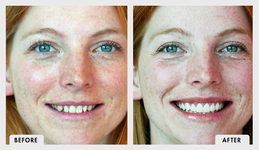 Before and After Veneers and Whitening