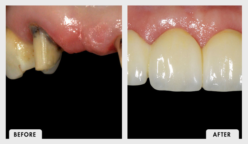 Before and After Full Zirconia Bridge