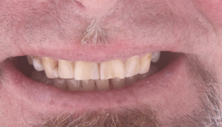 Full mouth rehabilitation (28 crowns)