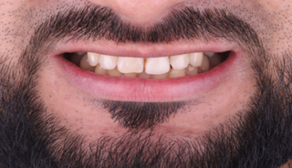 Dental implant (tooth #9)